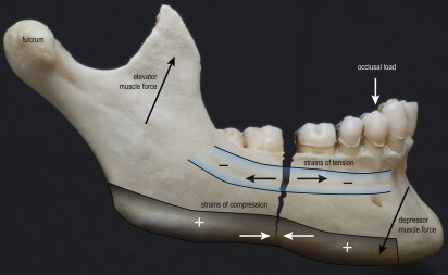 compression osteosynthesis mandible